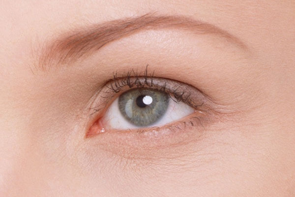 Мимические морщины вокруг глаз: ? как бороться с мимическими морщинами вокруг глаз